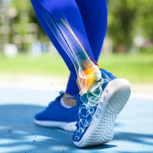 How Chiropractors Can Help Relieve Ankle Pain